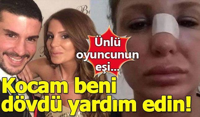Merve Şarapçıoğlu'nun sosyal medya'da yardım çığlığı! (Berk Oktay kimdir? ne zaman evlendi)