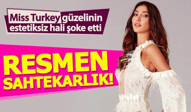 Miss Turkey 2018 birincisi Şevval Şahin'in estetiksiz hali şoke etti