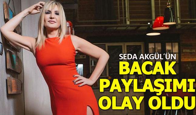 Seda Akgül bacak pozuyla sosyal medyayı salladı