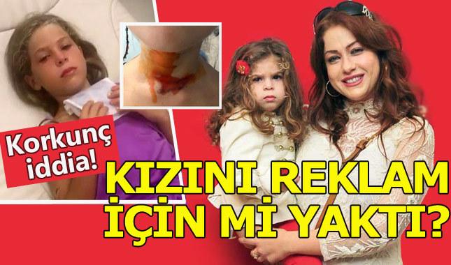 Yeliz Yeşilmen kızını 'reklam için yaktı' iddiası