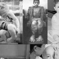 2017 KPSS Çernobil faciası nerede olmuştur sorusunun cevabı nedir?