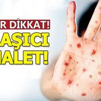 Aileler dikkat:Kızamık hastalığı sayısında büyük artış!