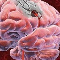 Beyin damarı tıkanıklığının nedenleri, belirtileri nedir, tedavisi nasıl olur?