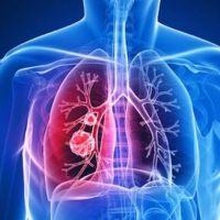 Bronşit nedir nasıl anlaşılır, bronşit nasıl geçer, ne iyi gelir, bronşitin belirtileri neler?