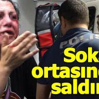 Bursa'da sokak ortasında saldırdı
