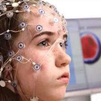 EEG nedir ( Elektroensefalografi ) neden çekilir, ücretli mi?