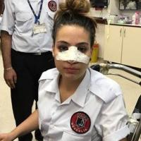 Kadın güvenliği su şişesi ile burnunu kırdı