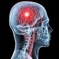 MS hastalığı nedir, belirtileri nelerdir - Multipl skleroz hastalığı tedavisi nasıldır?