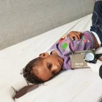 Yemen ve Kenya'da kolera can alıyor