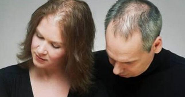 Saçınız dökülüyorsa bunları yapın