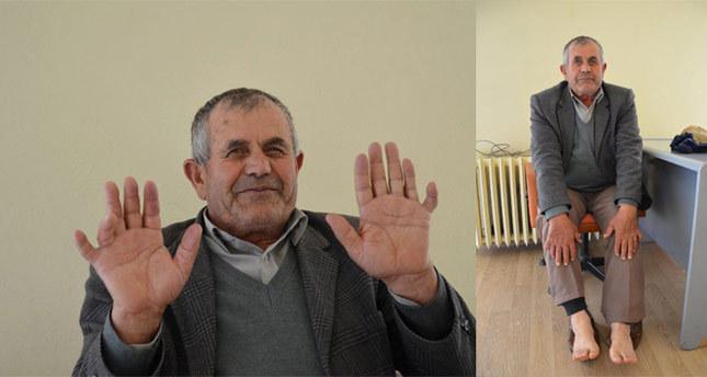 24 parmaklı adam görenleri şaşırtıyor