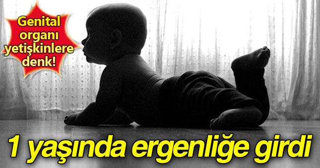 Bebekliğinde ergenliğe girdi