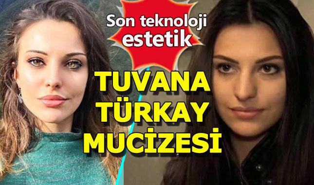 Güzel oyuncu Tuvana Türkay, estetik mucizesi çıktı