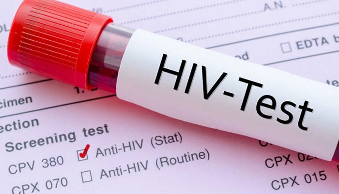 Hiv nedir? Hıv pozitif nedir | Hiv virüsü ne demek? Aids nasıl bulaşır?