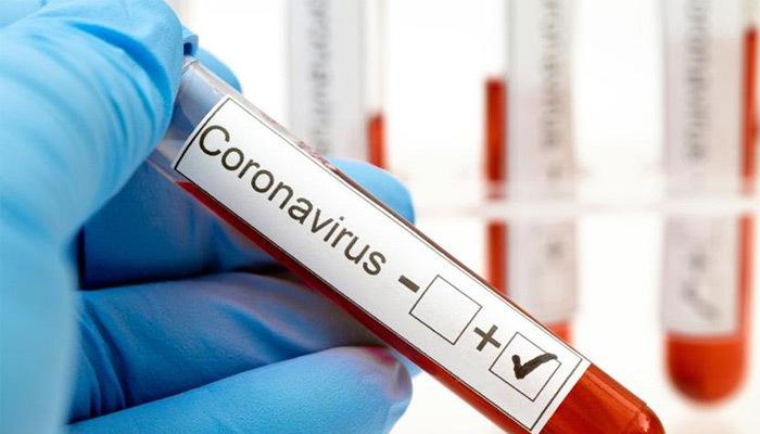 İstanbul'da 24 sağlık görevlisi koronavirüse yakalandı