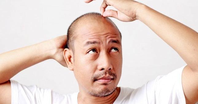 Kelliğe yeni çözüm: Saç klonlama