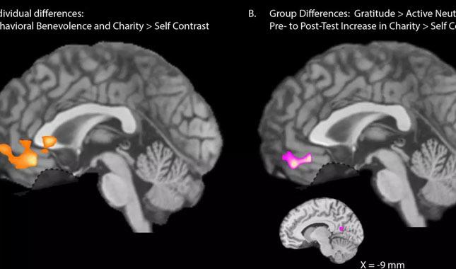 """""""Müteşekkir olduğumuzu"""" yazmamız beyin yapımızı değiştiriyor"""