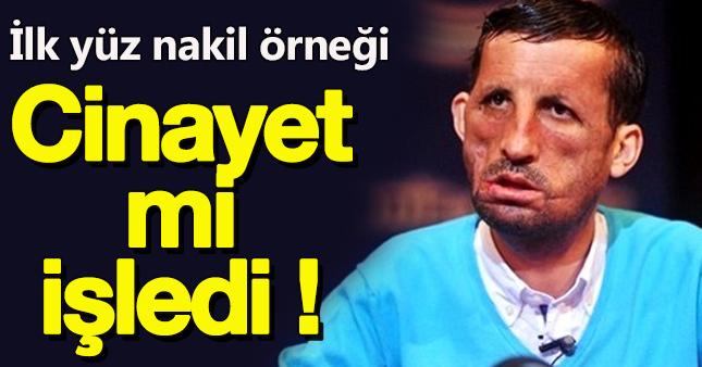 Yüz Nakilli Uğur Acar'a 'Cinayet' suçlaması