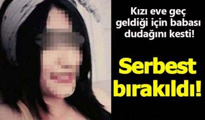 Edirne'de kızı eve geç geldiği için babası dudağını kesti! Serbest bırakıldı!