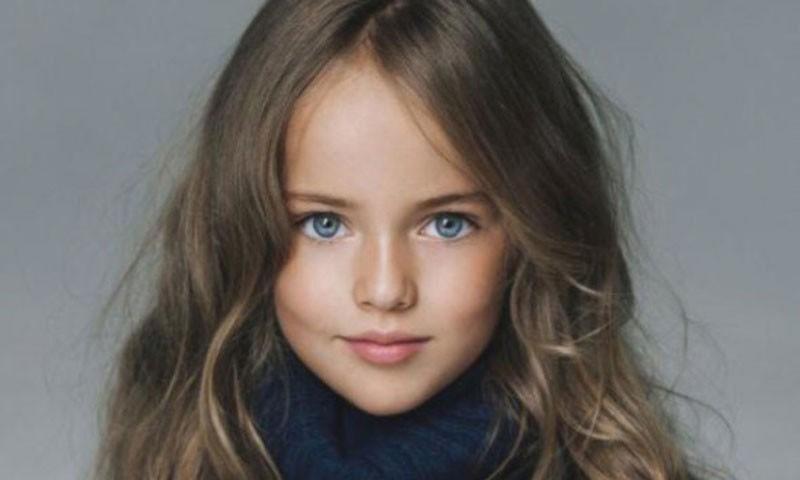 Dünyanın en güzel çocuğunun son hali A24