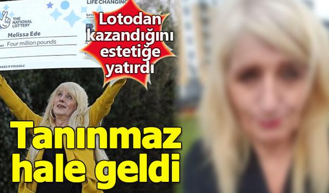 Lotodan çıkan parayı estetiğe yatıran kadın 'insanlıktan' çıktı