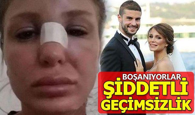 Merve Şarapçıoğlu ve Berk Oktay boşanıyor A24